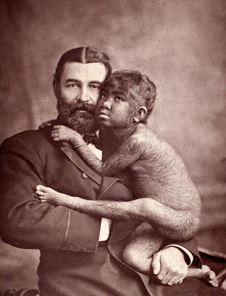 """Krao Farini, urodzona w XIX wieku z hipertrichozą, była wówczas uważana za """"brakujące ogniowo"""" między człowiekiem a małpą i pokazywana w obwoźnych cyrkach (W & D Downey)"""